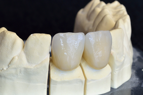 Dental Crowns in Flushing