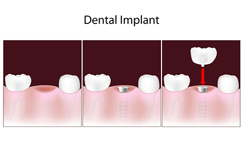 Dental Implants in Flushing